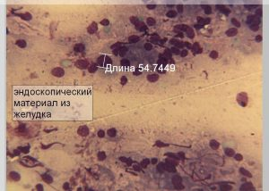 Эндоскопический материал из желудка