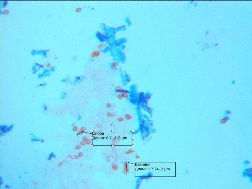 Lindtneria panphylensis – микропрепарат гимениального слоя