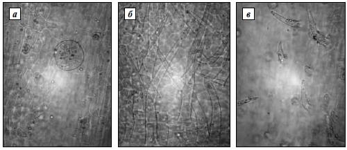 Эпидермис стебля лофанта анисового сорта «Астраханский 101»
