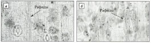 Рафиды оксалата кальция в клетках мезофилла листа подснежников Воронова (а) и белоснежного (б)
