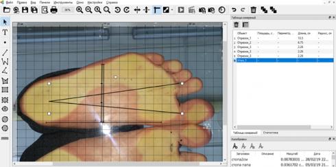Определение плоскостопия с помощью ПАК «ЯРКОСТЬ» и программы Altami Studio